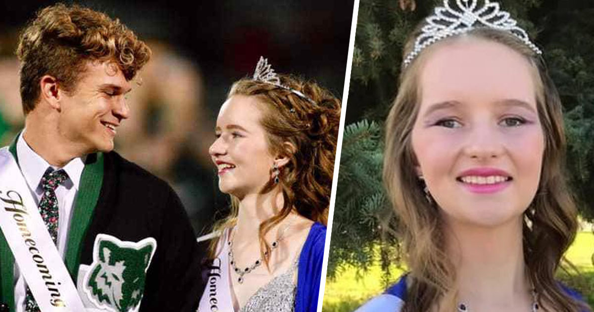 Teen Who Survived Being Shot In Head And Left For Dead Crowned Homecoming Queen