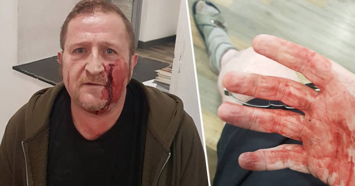 Gay Man Attacked By Group Of Teens With Hammer After Finding Him On Grindr