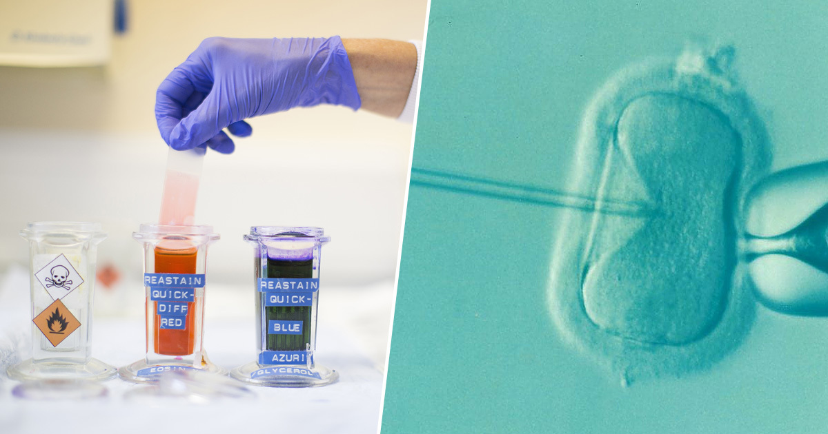 Mum Suing Sperm Bank After Picking 6ft Tall Donor But Giving Birth To Dwarf
