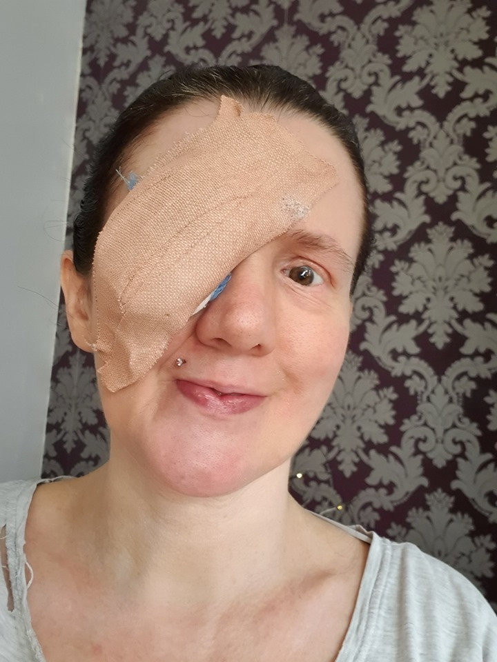 Woman's eye pops out