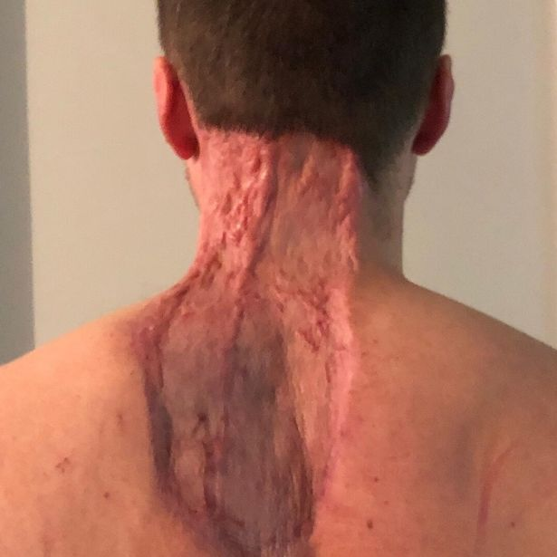Dad Left With 15-Inch Scar After Spot Turns Out To Be Cancer