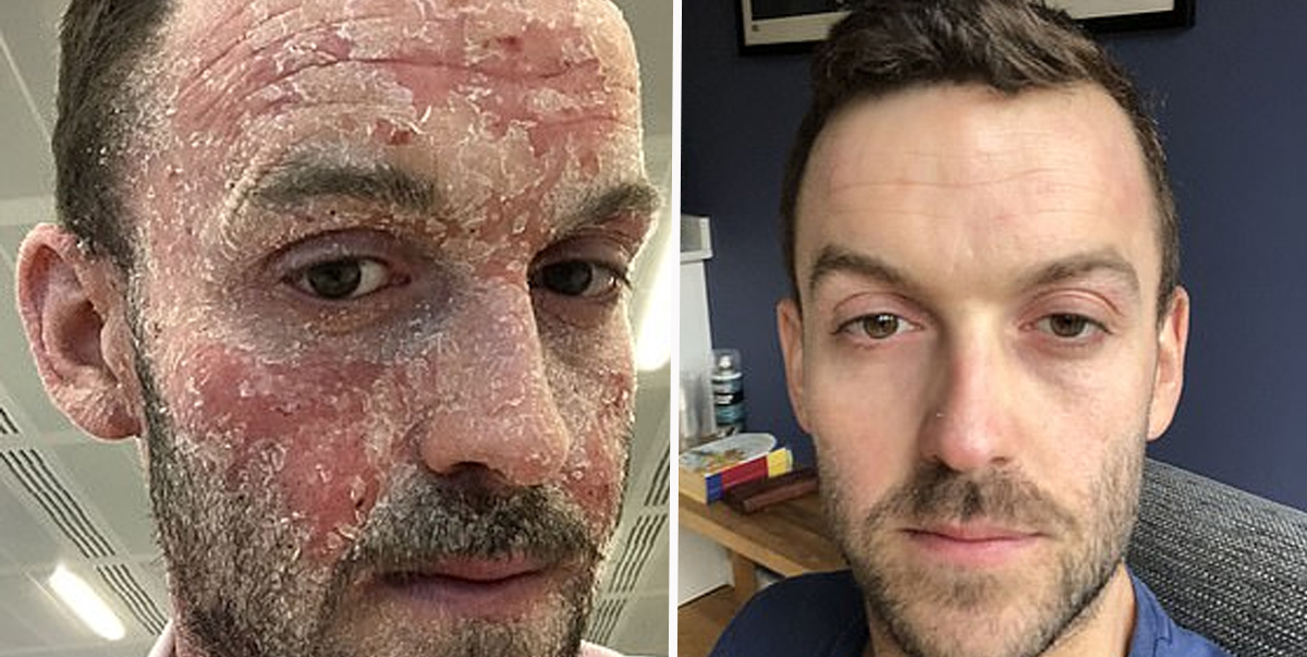 Man With Severe Eczema Shares Amazing Transformation After Ditching Steroid Medication