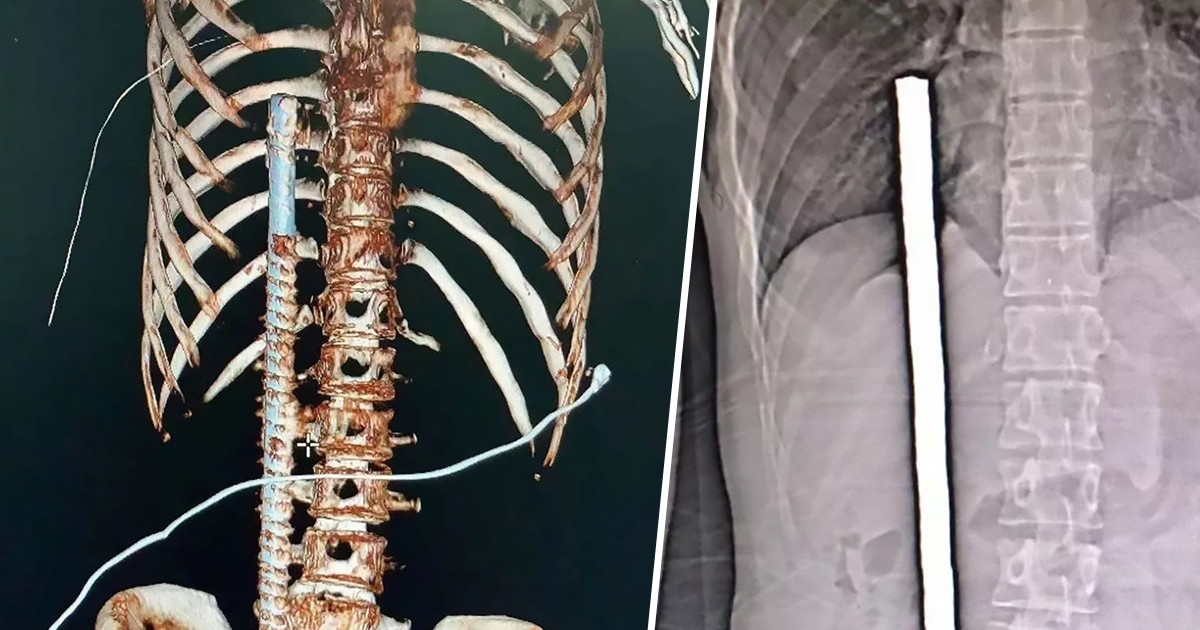Builder's Bum Impaled By Metal Rod Just Missing His Heart