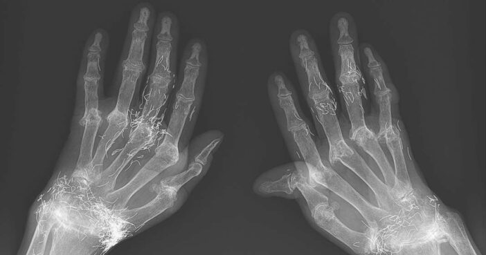 X-Rays Show Gold Splinters Embedded In Woman's Hands