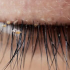 Lash Lice Are Becoming More Common In Eyelash Extensions, Doctors Warn