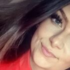 Woman Loses Half Her Skull After Being Knocked Down By Hit And Run Driver