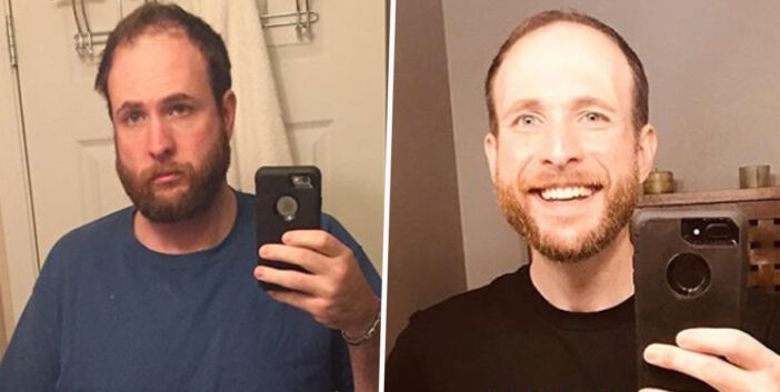 Man's Selfies Three Years Apart Show How Giving Up Booze Has Changed Him