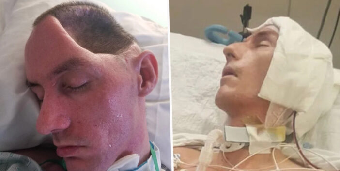 New York Dad Left Paralysed After Brutal Attack Leaves Him