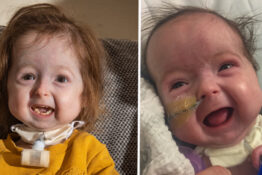 Girl, 2, Is Only Person In The World With Rare 'Benjamin Button Disease'