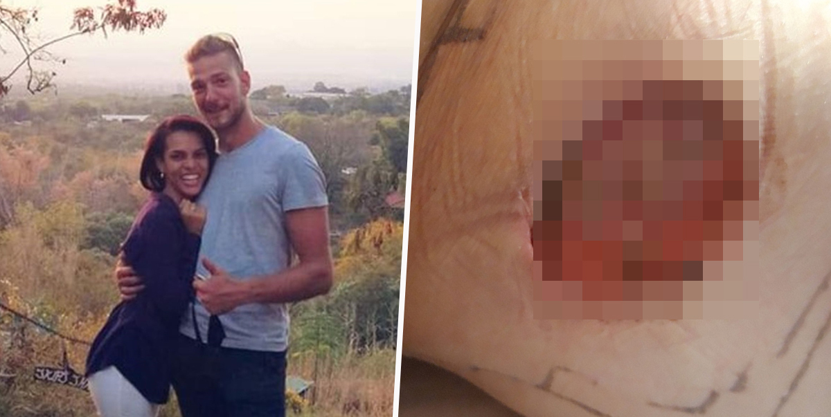 Man Left With Hole In His Bum Cheek After Being Bitten By A Spider On His Engagement Night