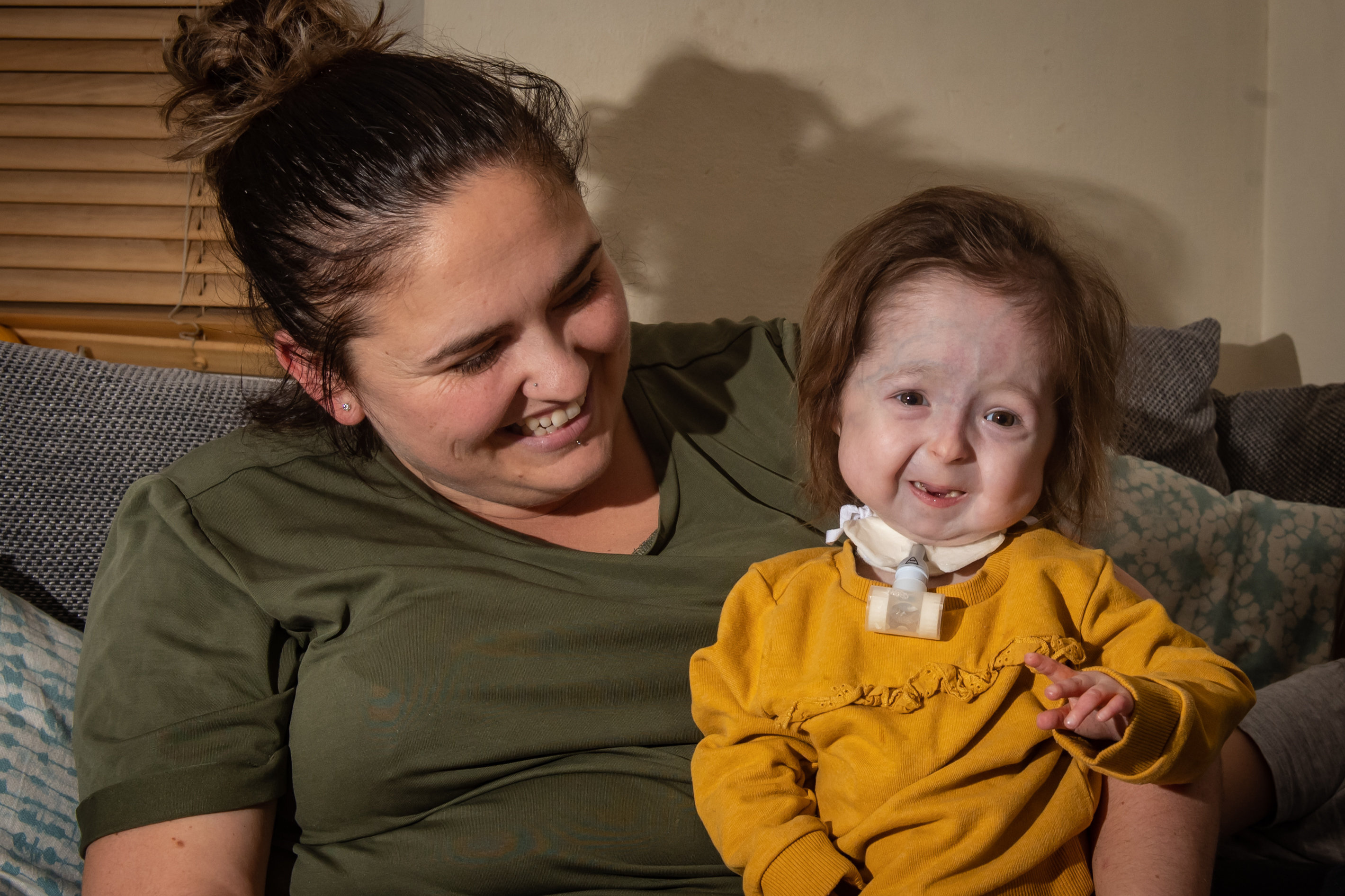 Girl, 2, Is Only Person In The World With Rare 'Benjamin ...