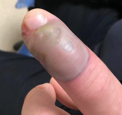 Infected finger