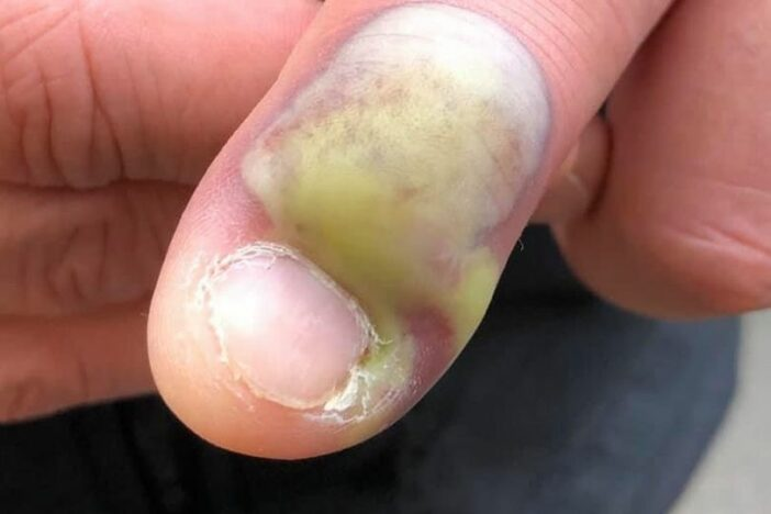 Finger infection