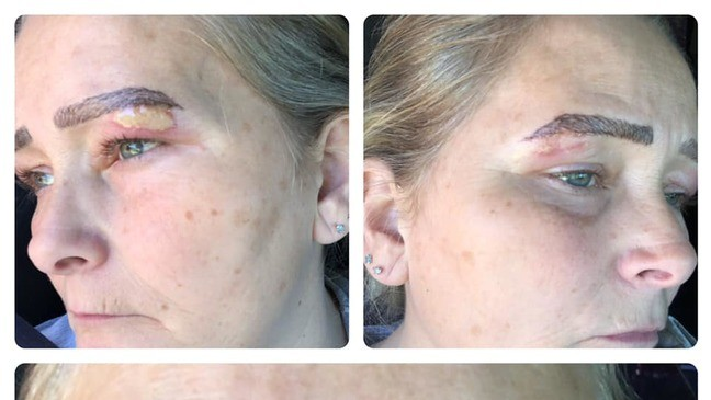 Woman's Botched Microblading Procedure Leaves Her With 'Monster Brows'