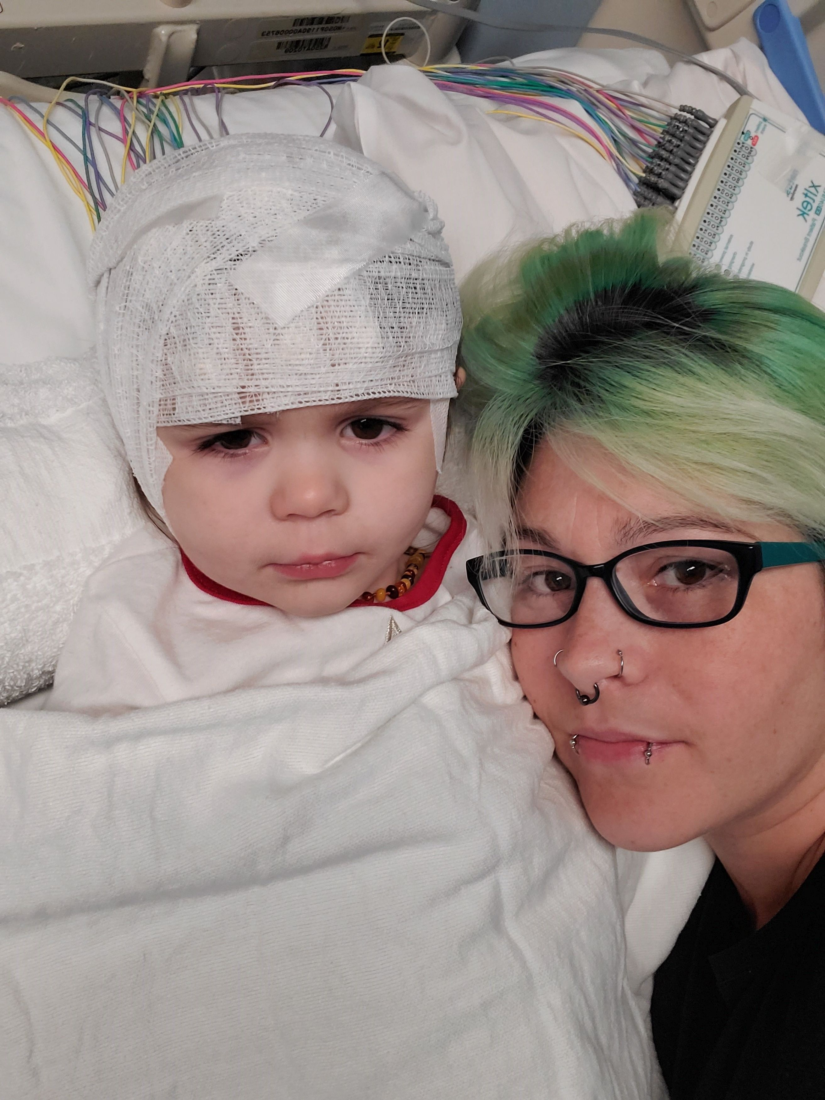 Toddler's Heart Stops Beating Every Time She Gets Upset Due To Rare Condition