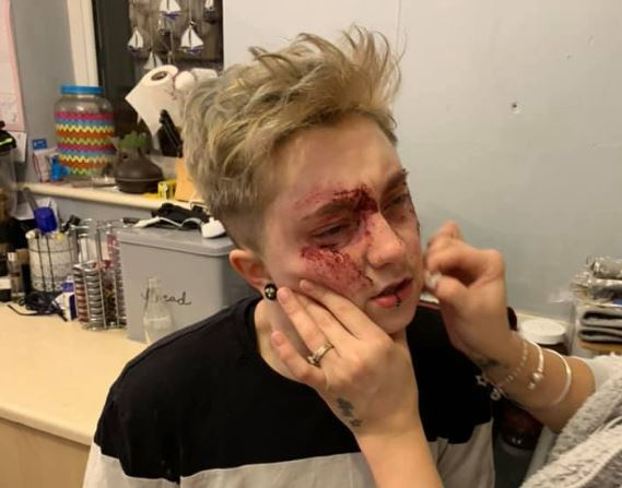 Lesbian woman shares pictures of injuries after homophobic attack