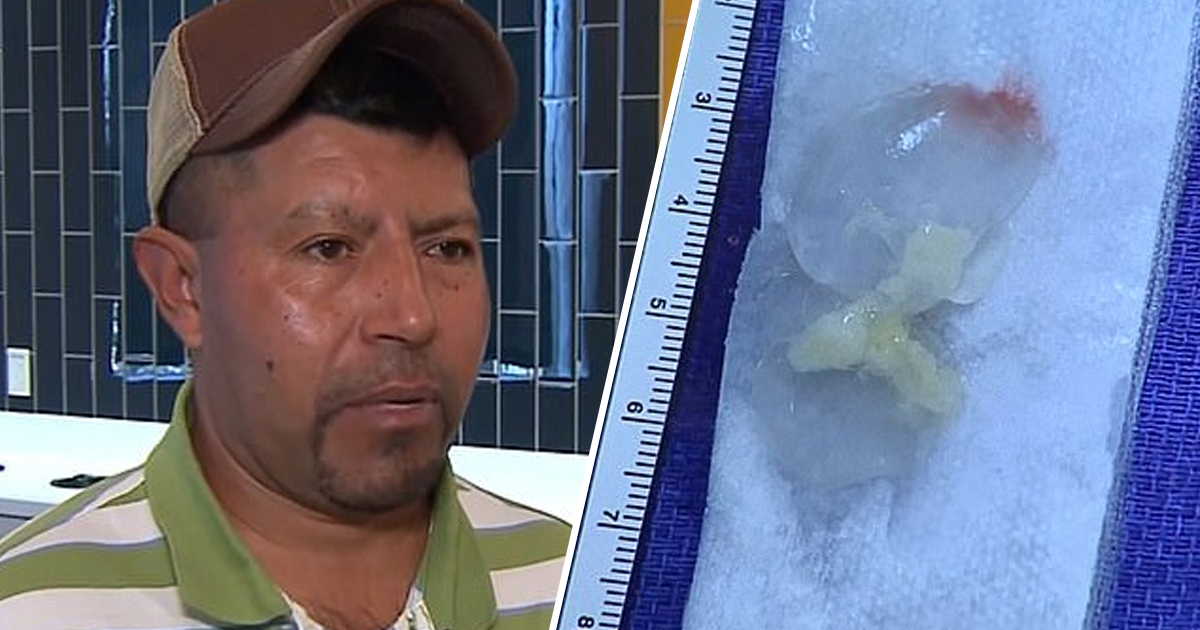 Man Discovers Mystery Illness Was Caused By 10-Year-Old Tapeworm In Brain