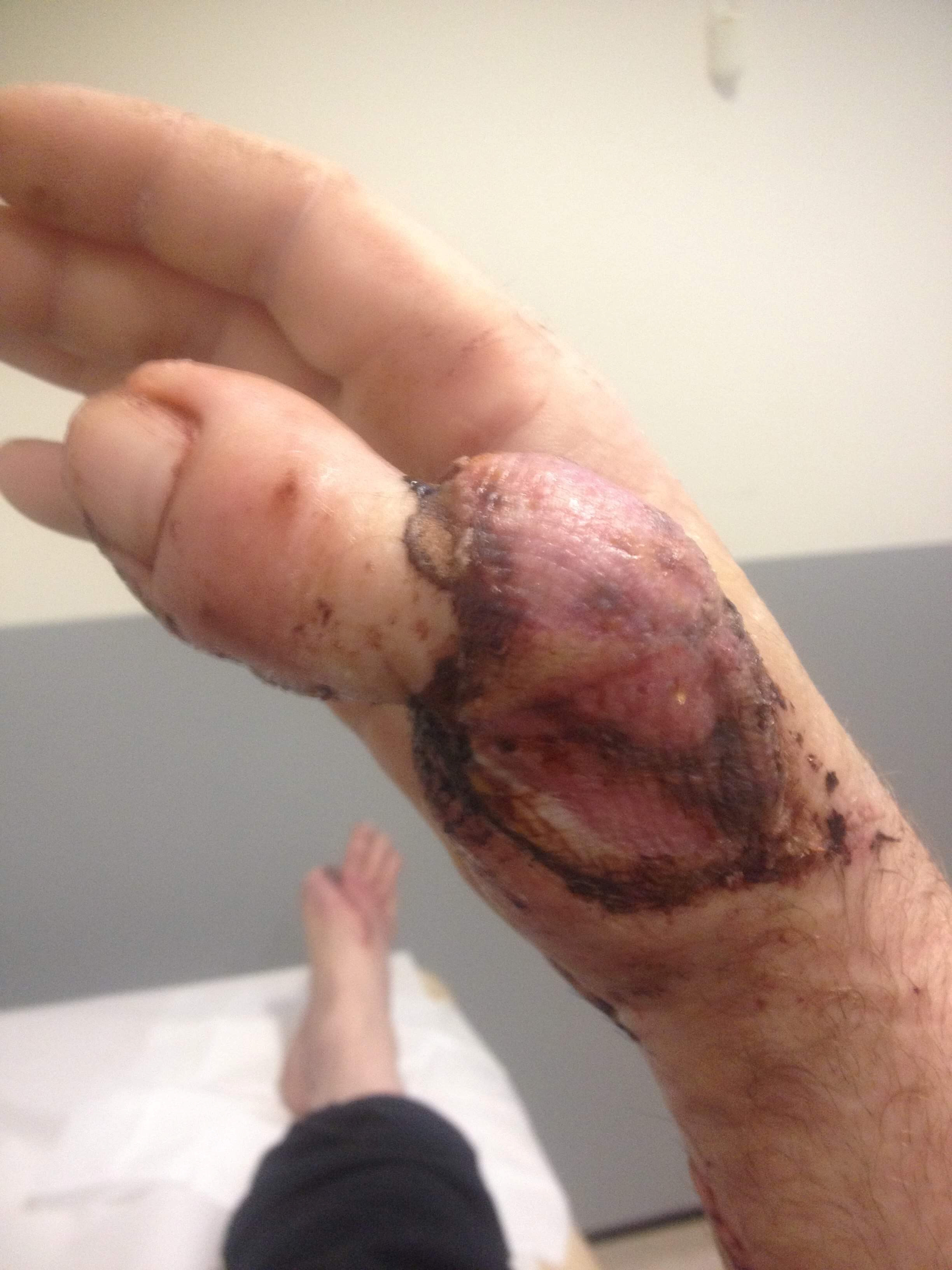 Man showing off toe-thumb after losing thumb in work accident