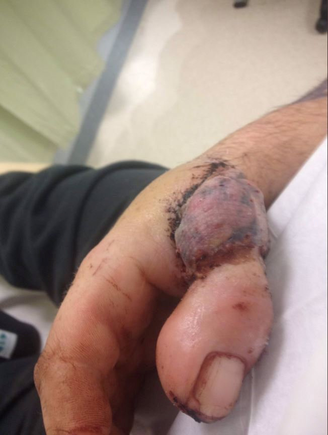 Guy has toe sewn on to hand after losing thumb