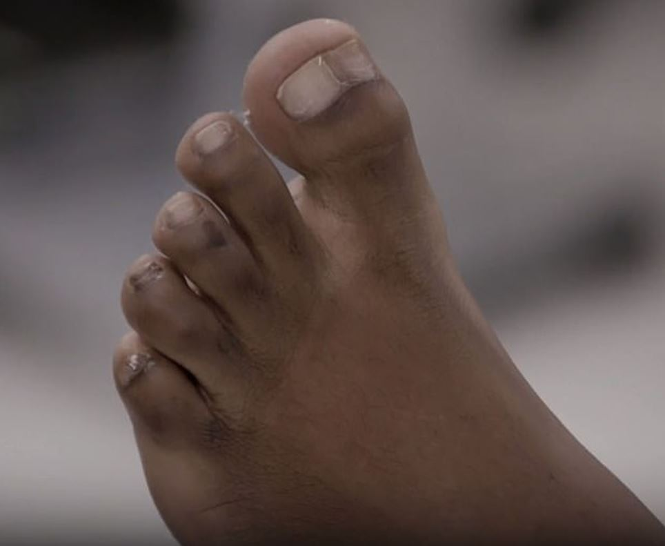 Woman With Giant Toe Has Surgery To Get Half Of It Removed