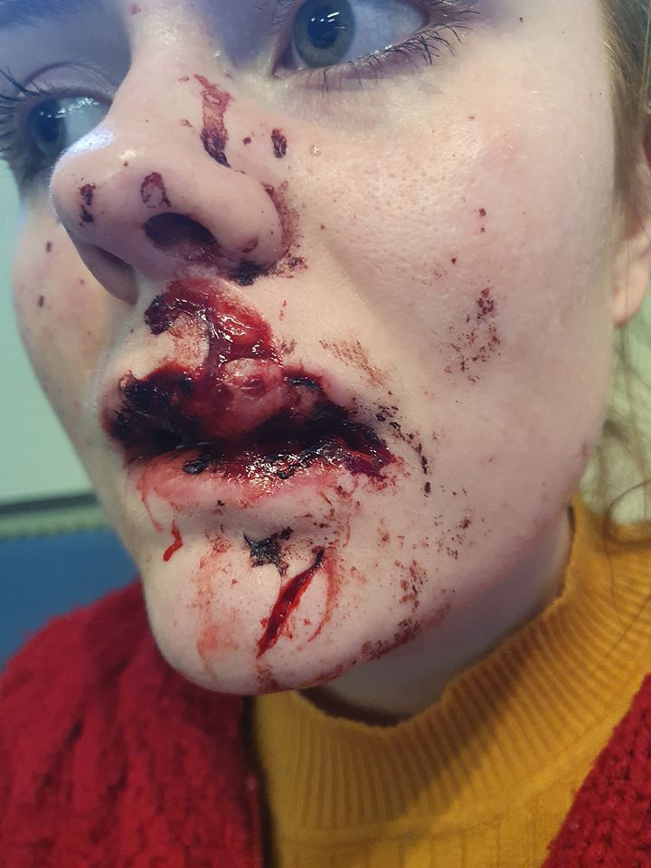 Woman Scarred For Life After Bottle Was Chucked At Her Face By Youths