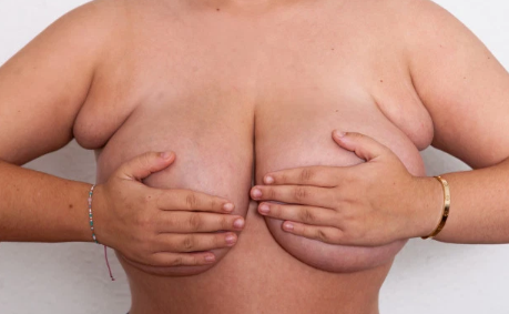 Woman Who Had 'Four Breasts' Due To Fat Under Her Armpits Finally Gets Them Removed
