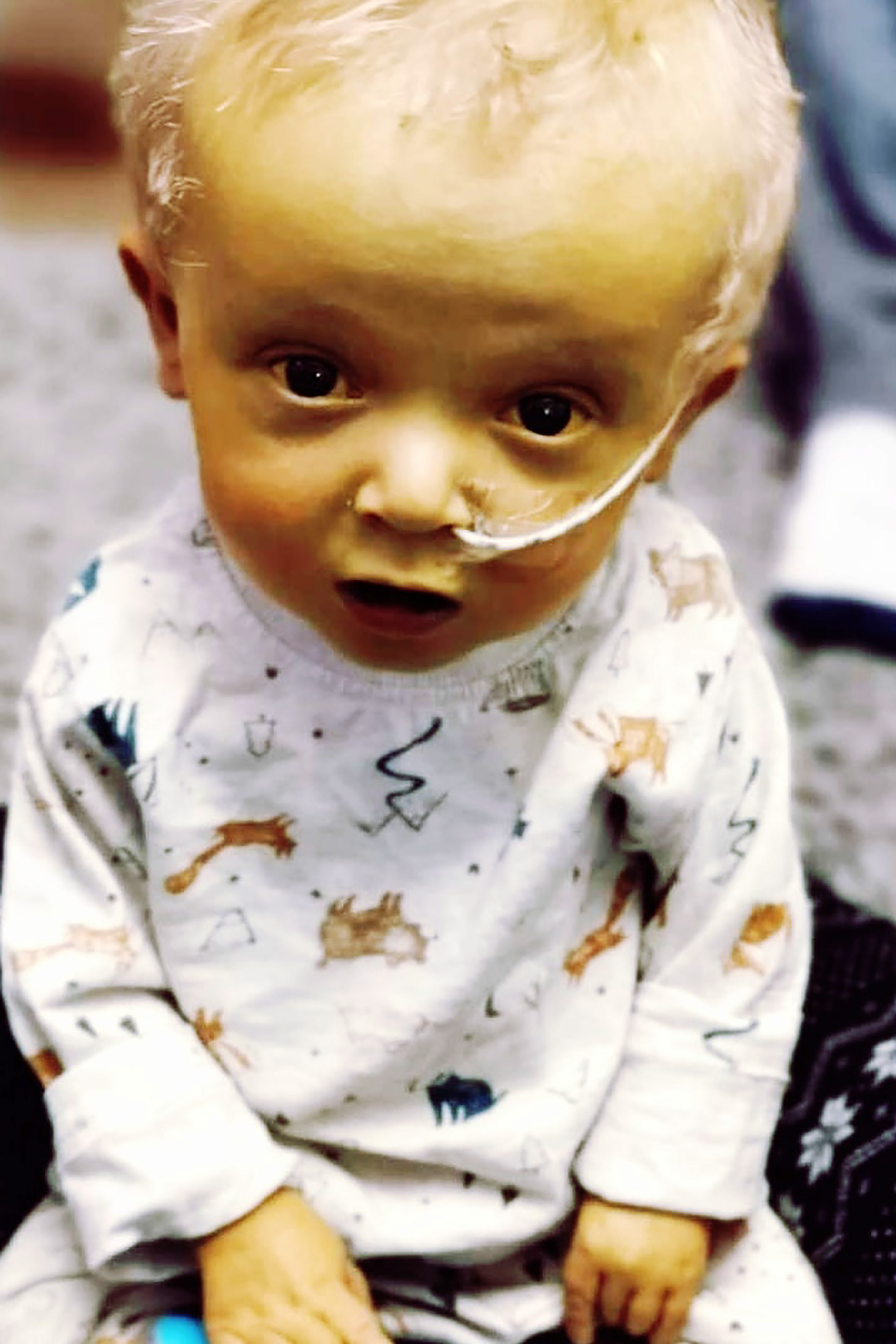 boy with rare condition trolled for appearance yellow tinge