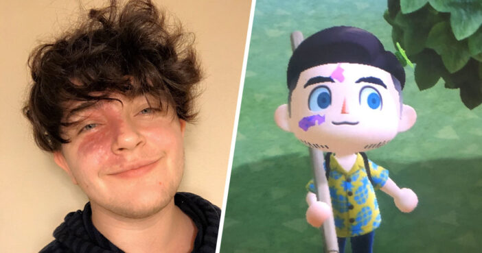 Guy Able To Recreate Birthmark 'For The First Time' On Animal Crossing