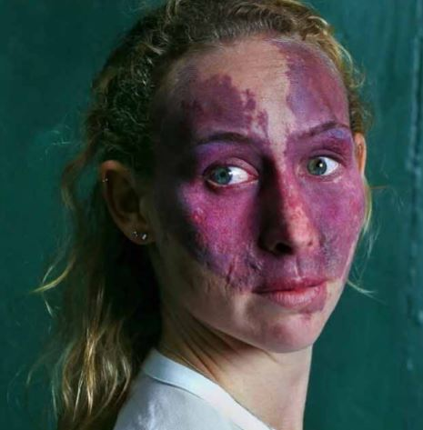 Woman born with birthmark left with scars after surgery to try and fix it