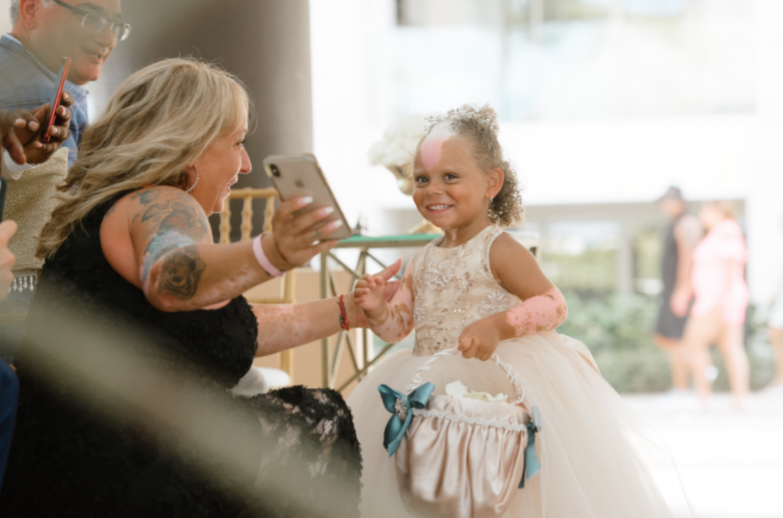 Mum and Daughter with rare genetic skin condition 2