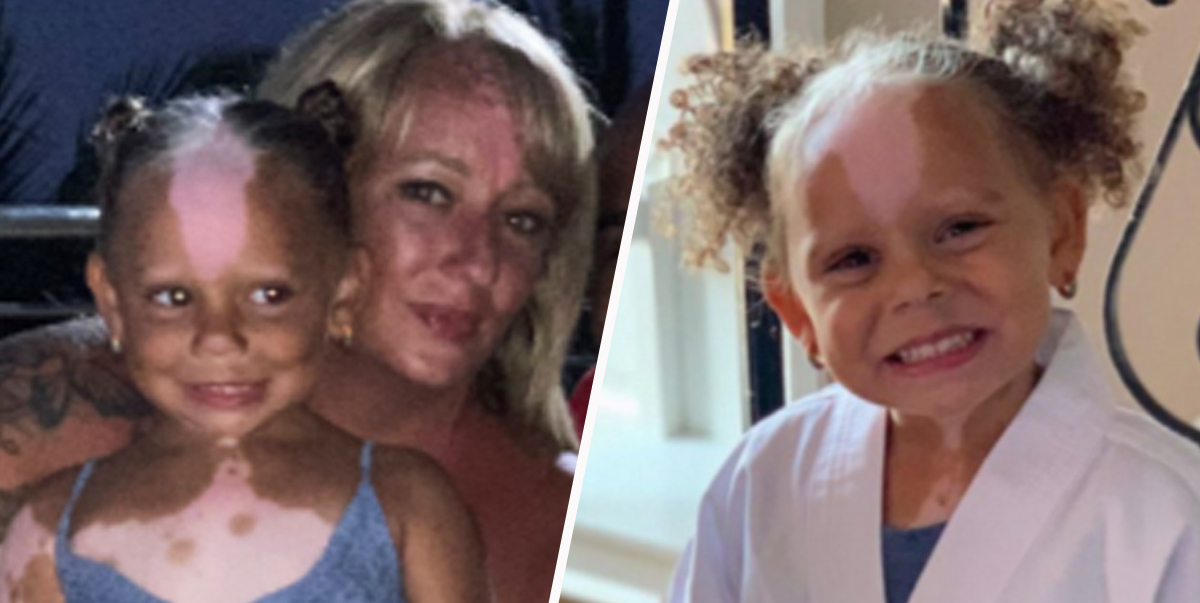 Mum and Daughter with rare genetic skin condition