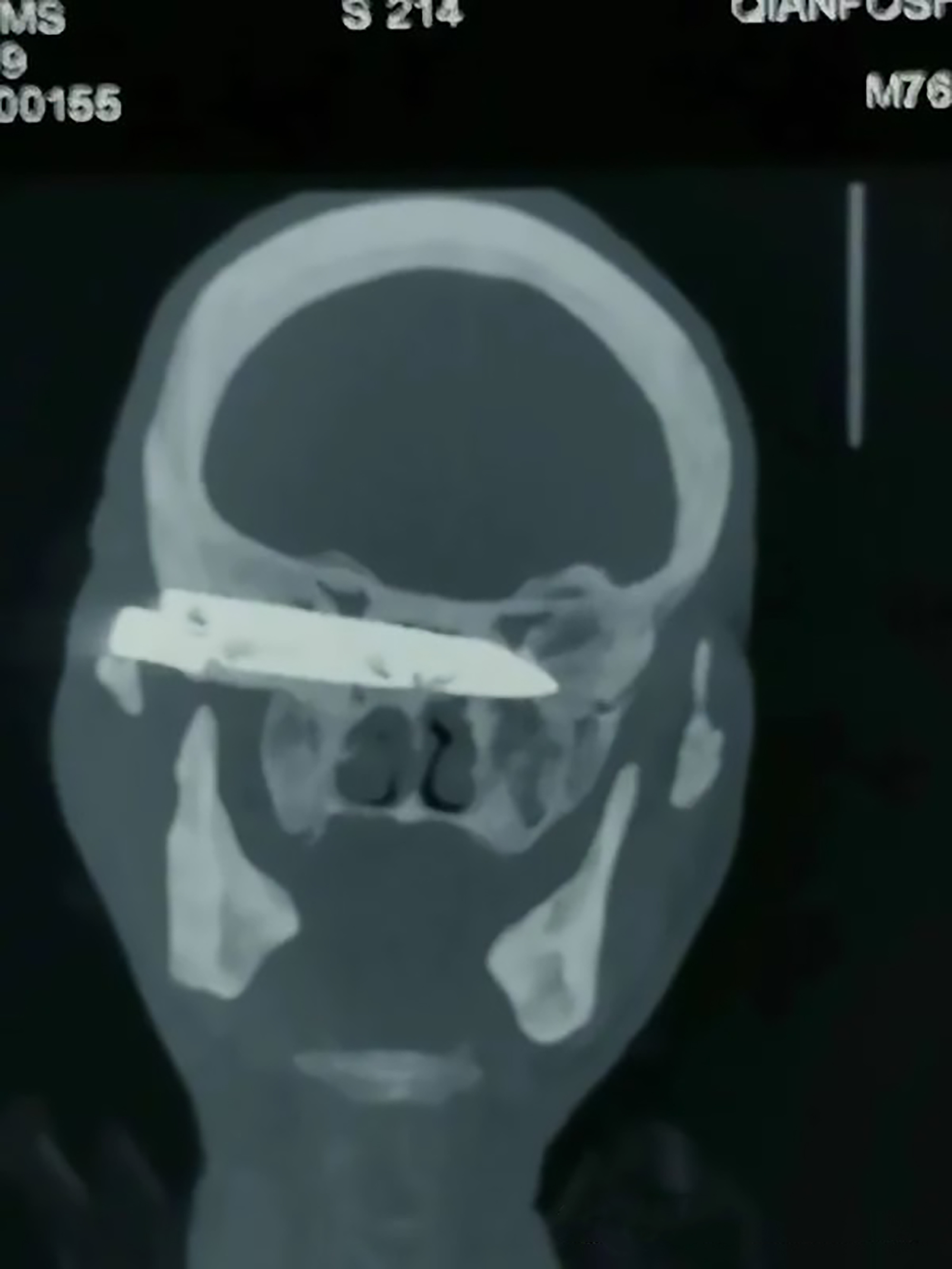 Rusty Knife Removed From Man's Head 26 Years 2