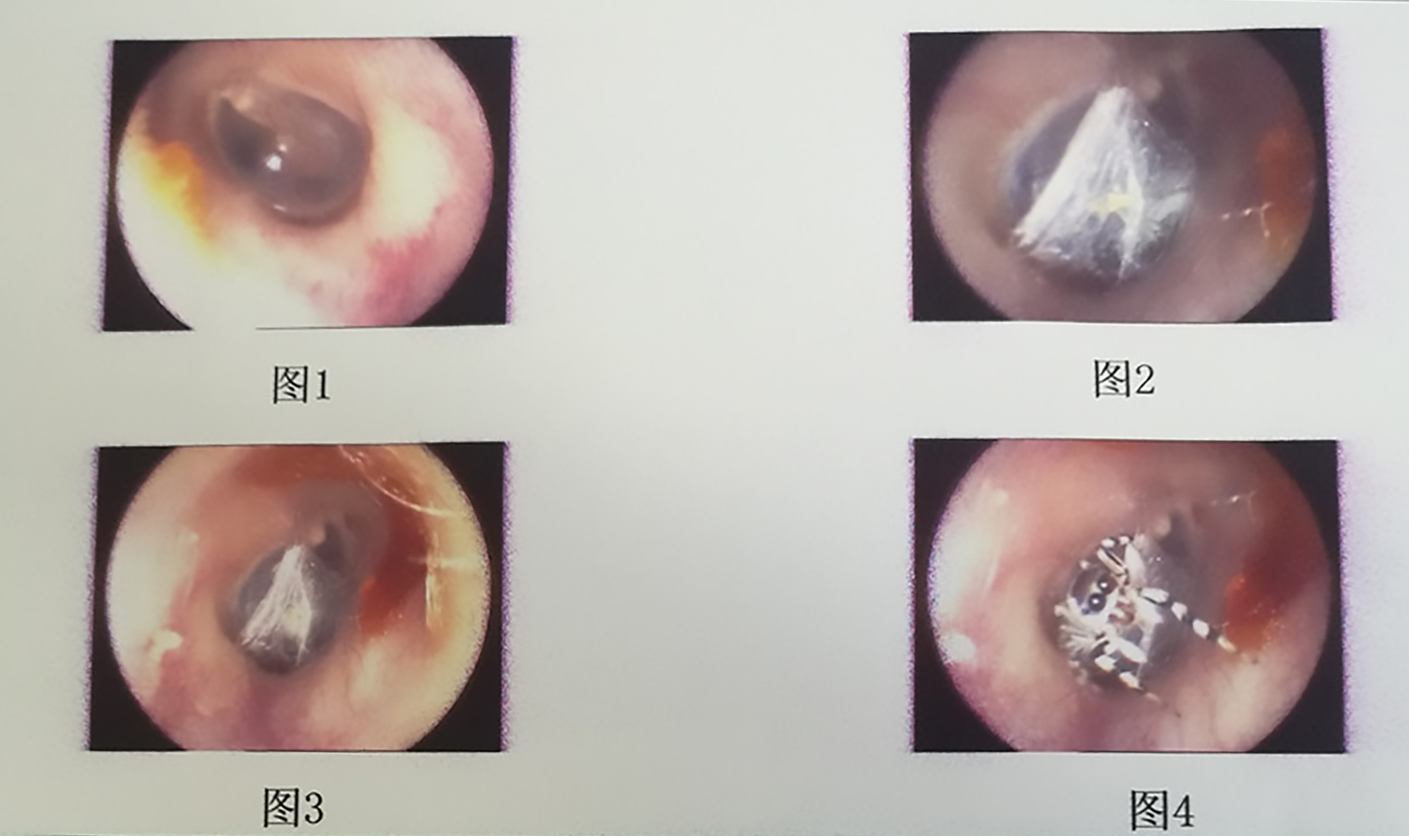 Doctors Find Live Spider Spinning Its Web Inside Woman's Ear