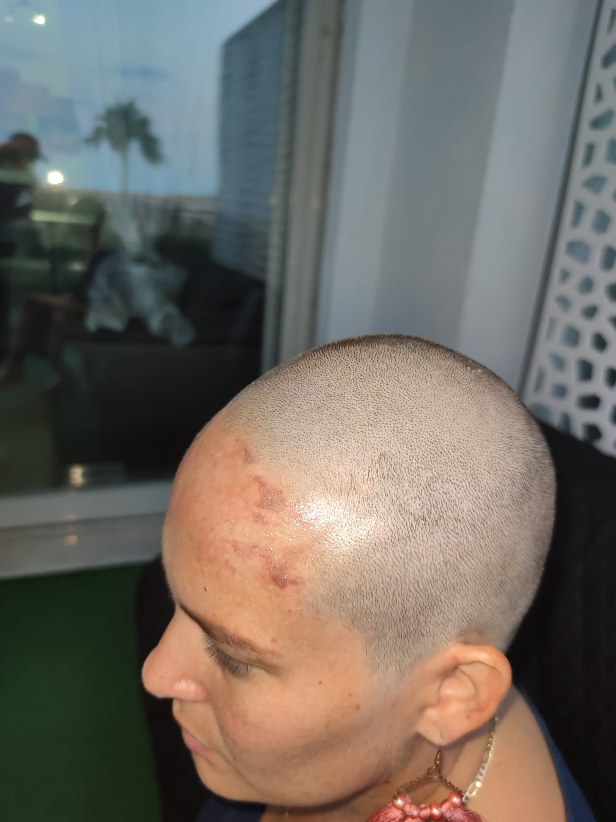 Woman Forced To Shave Head After Attacker Stuck Glue-Filled Hat On Her