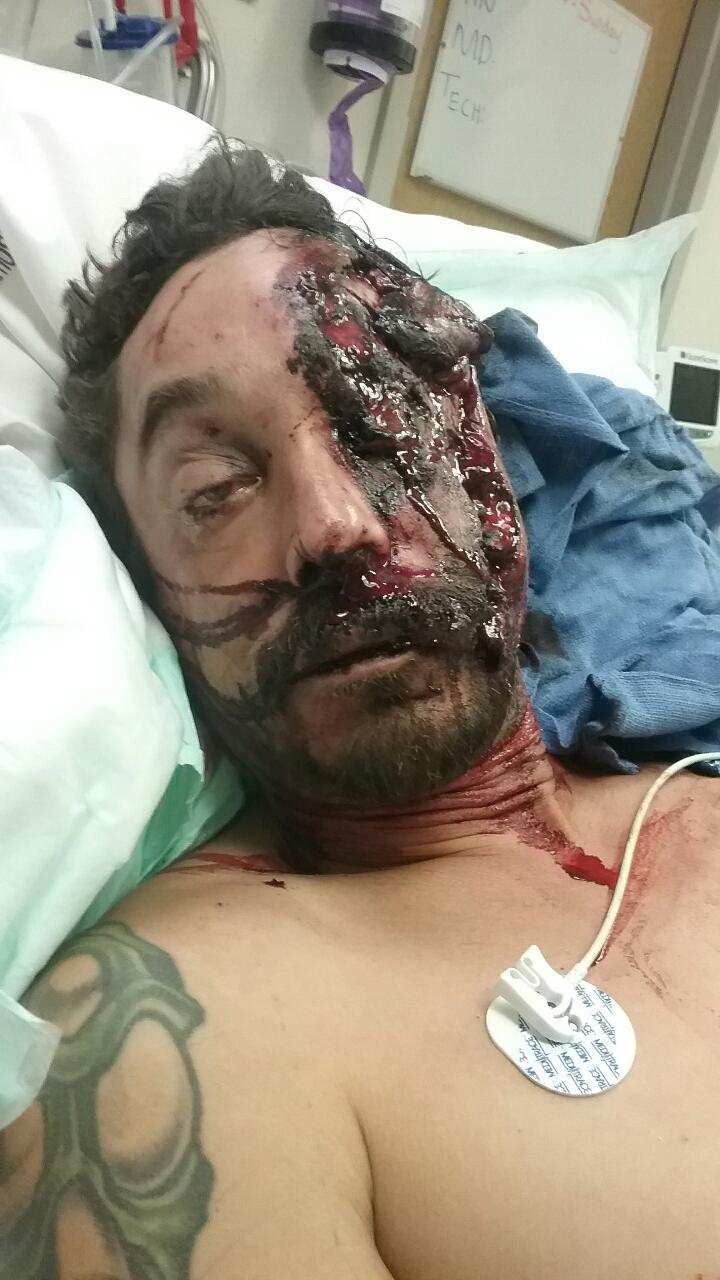 Man left with half a face after drunk driving crash