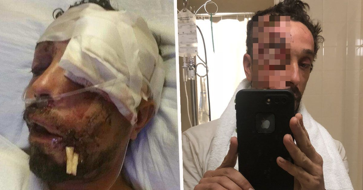 Drink Driver Loses Eye Ball And Half His Face In Horrific 100mph Crash