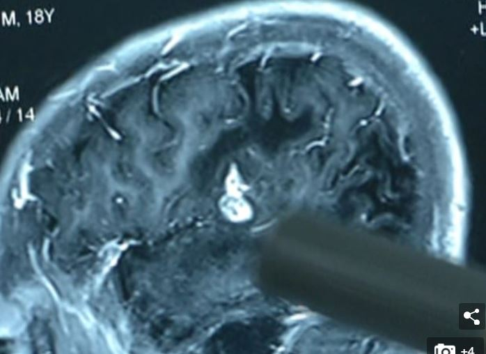 Guy Finds Five-Inch Worm Has Been Living Inside His Brain For 17 Years