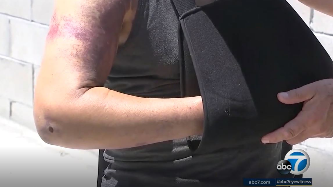 man robbed of his life savings, left bruised and beaten