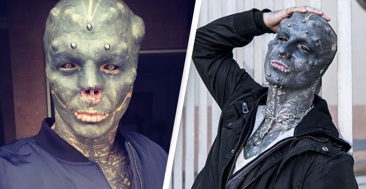 Man Has Nose Removed And Tongue Split So He Can Look Like An Alien