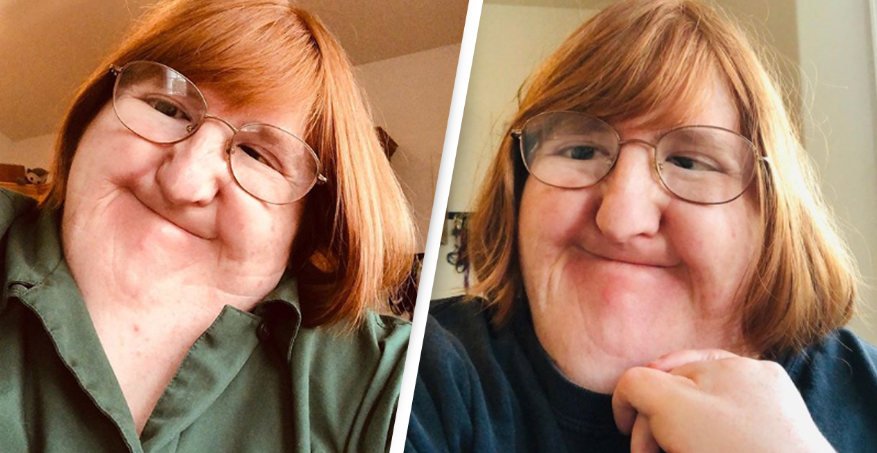 Woman With Bone Disorder Shares Selfie Every Day For A Year