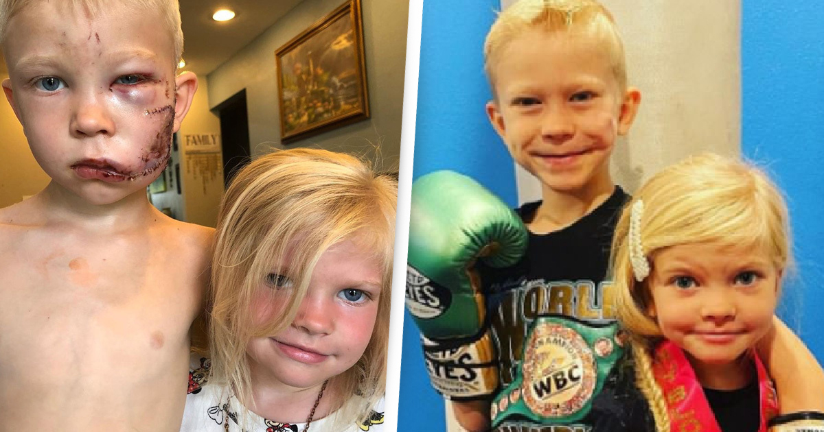 Heroic Six-Year-Old Who Saved His Sister From Dog Undergoes Treatment For Facial Scars