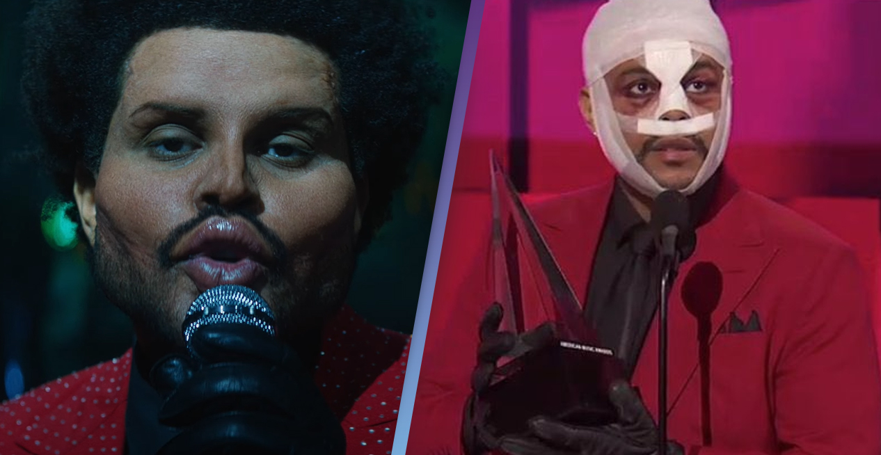 The Weeknd Shows Off Botox Prosthetics After Accepting Award With Face Covered In Bandages